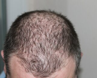 The Effect of Insomnia on Hair Loss