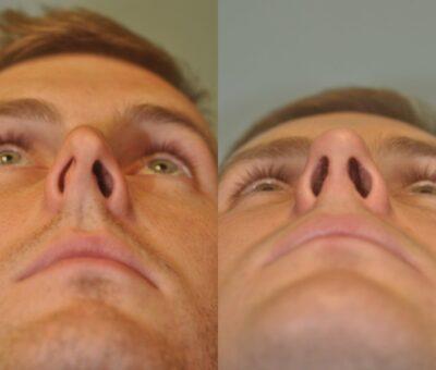 nasal deviation