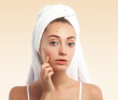 purulent acne