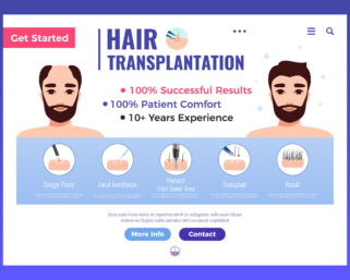 All about hair transplantation (part2)