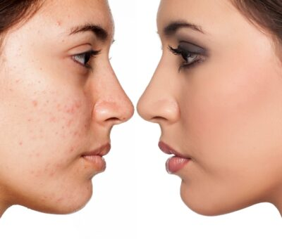 The best natural treatment for acne