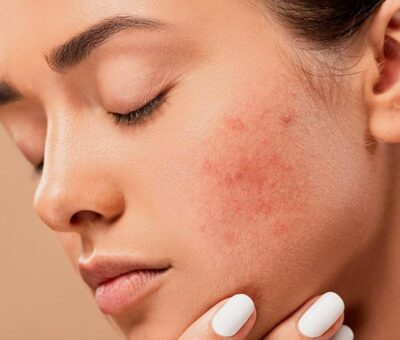 Here's How to Get Rid of a Pimple