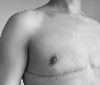 What Is the Difference Between Top Surgery and a Mastectomy ?