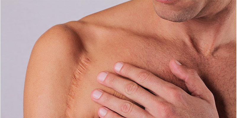 How to clean scars on your skin with laser