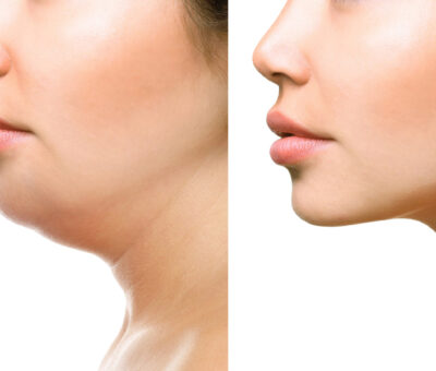 What you need to know about double chin treatments